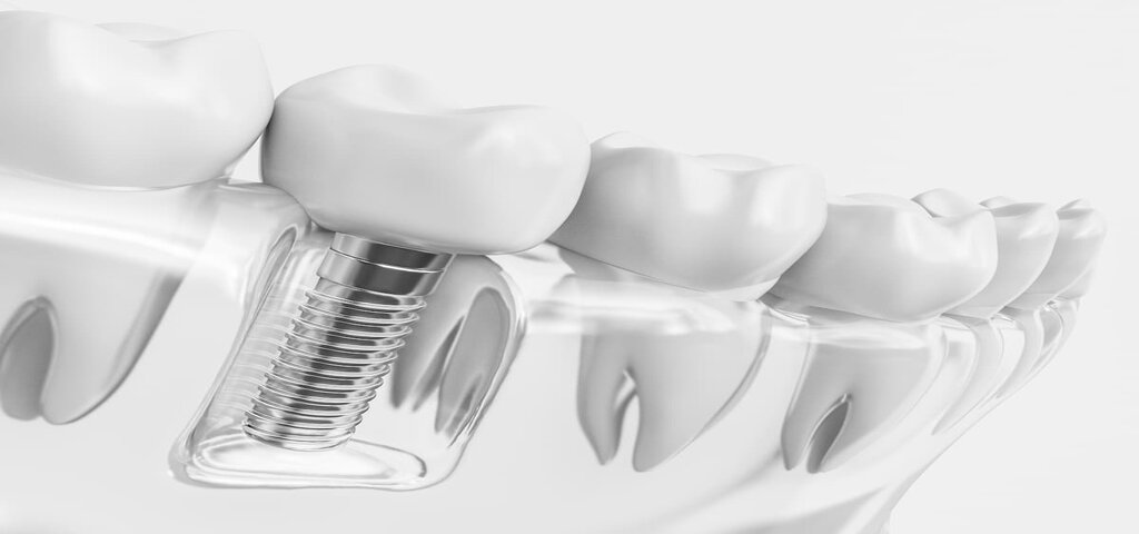 Zahnchirurgie Köln Zahnarzt